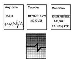 Assessing Arrhythmias